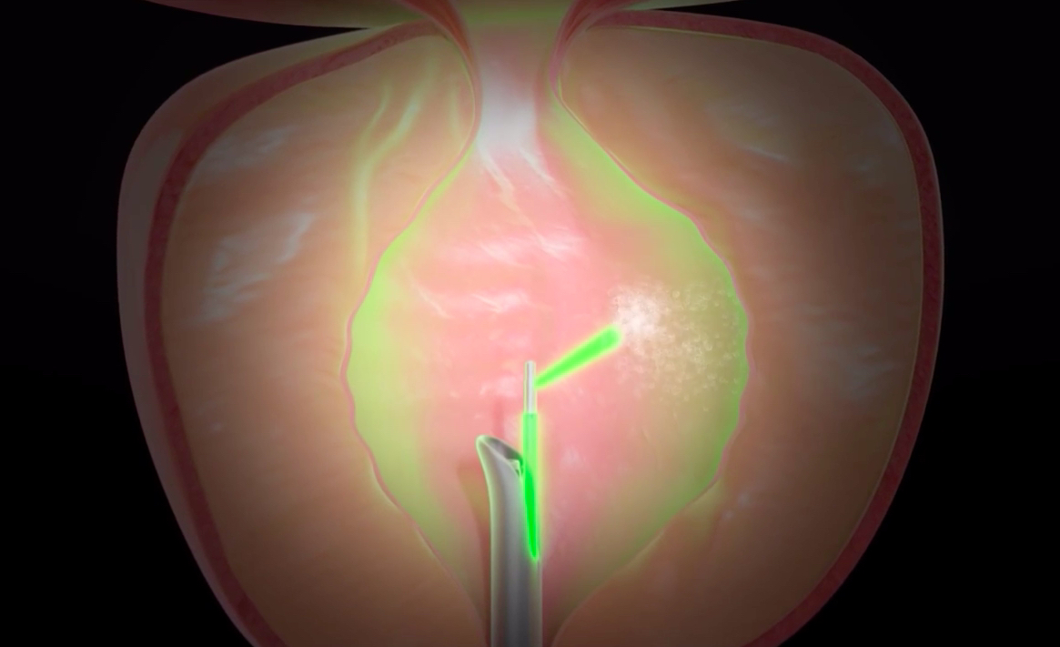 Greenlight laser vaporisation of prostate