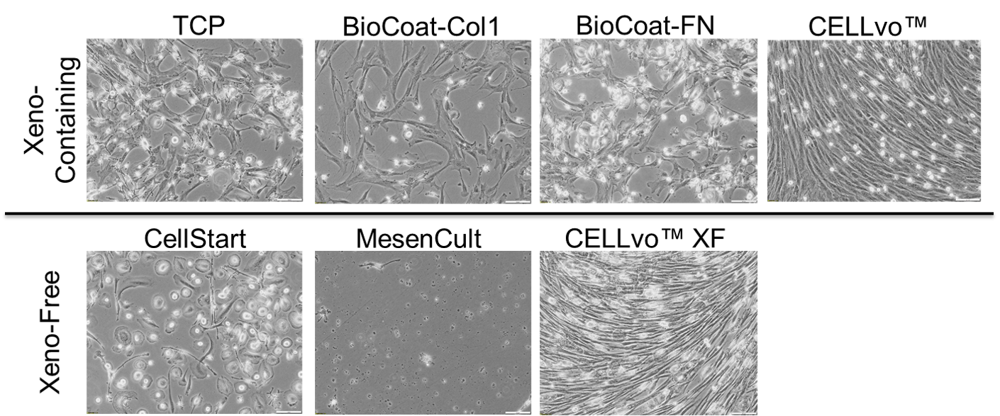 BM-MSC isolation from primary bone marrow mononuclear cells (100x) at day 14.