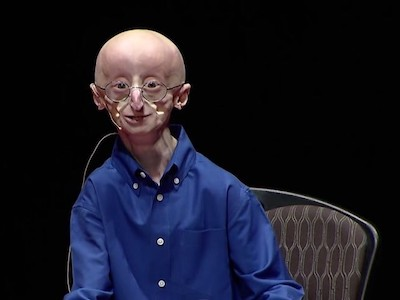 The late Sam Berns, a HGPS patient who died in 2014, shown here at his  TEDx talk