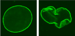 Fluorescence imaging of lamin A protein, showing a normal nucleus (left) and a nucleus of a cell from an HGPS patient (right).