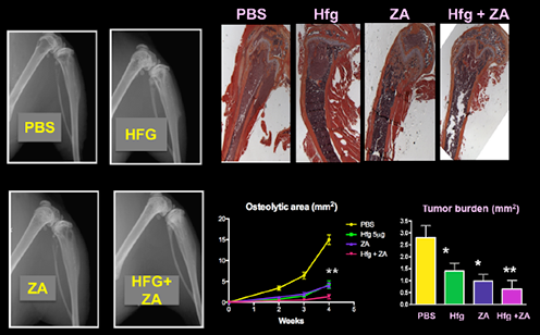 To decrease breast cancer bone metastases combined treatment of Halofuginone (Hfg) and Zoledronic Acid (ZA) is more efficient than either drug individually.