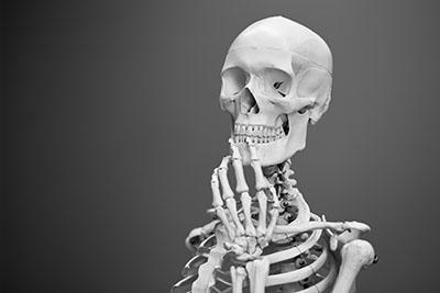 Bone density   Hataitai Osteopaths   Wellington Osteopath