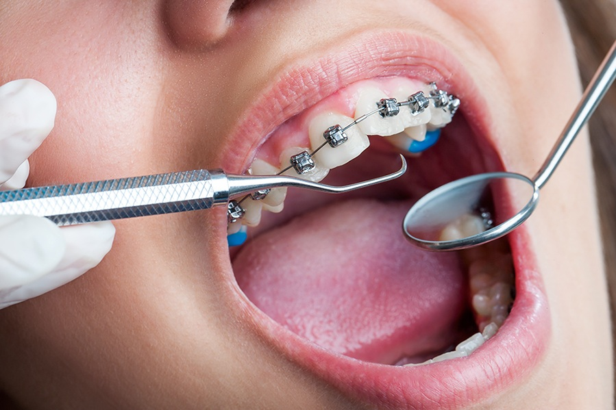 Orthodontics1 (1).jpg