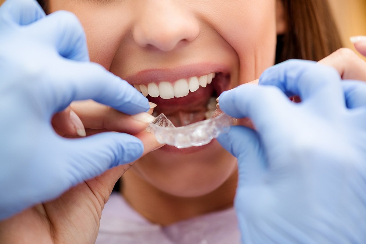 orthodontist-with-invisalign-patient.jpg