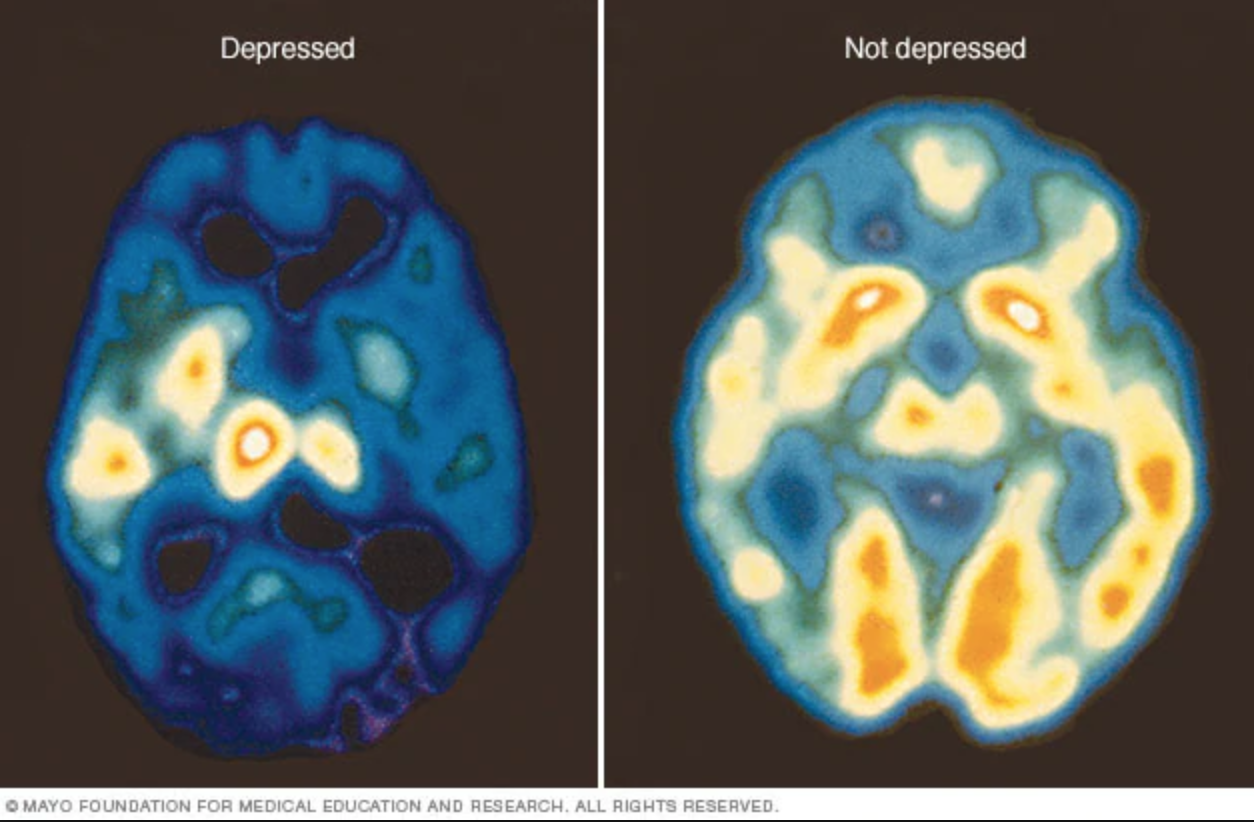 An increase of blue and green colors , along with decreased white and yellow areas, shows decreased brain activity due to depression.