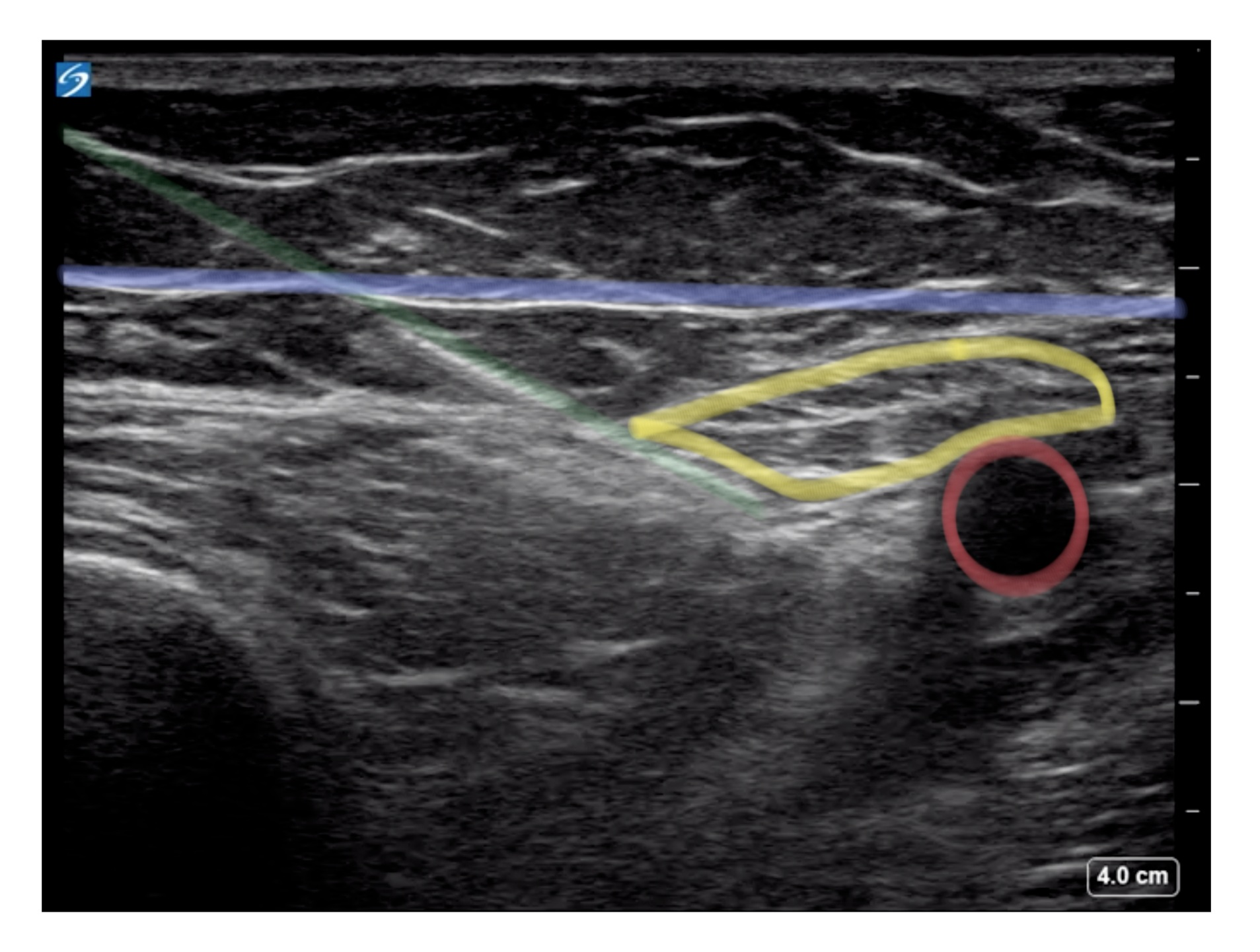 In-plane view of the FNB/FIB. The needle (green) is traversing the fascia iliaca (purple). The femoral nerve (yellow) is a triangular structure just lateral to the femoral artery (red).