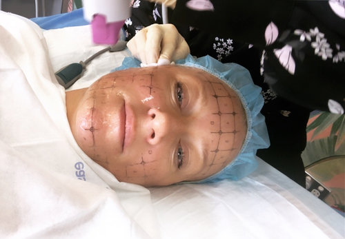 Thermage Skin Tightening: Before & After