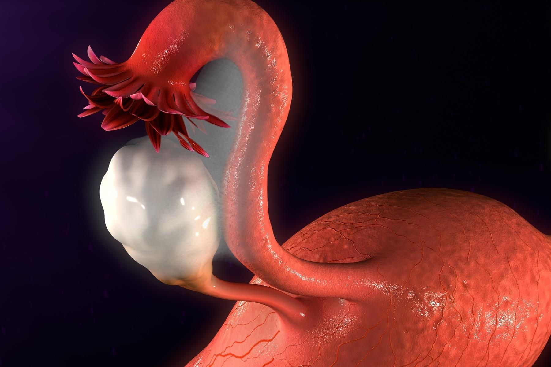 ADNEXPROZESSE - Was bedeutet Adnexprozess?Adnexprozesse werden meist durch auftretende Beschwerden oder im Rahmen von Routineuntersuchungen, z.B. mittels transvaginalem Ultraschall, entdeckt. Meist handelt es sich um bei Adnexprozessen um Zysten des Eierstocks (Ovar), also mit Flüssigkeit gefüllten Hohlräumen. Seltener handelt es sich um solide, also feste Tumore oder einer Mischung aus zystischen und soliden Veränderungen. Auch eine Eileiterschwangerschaft (Tubaria) kann sich als Adnexprozess darstellen.