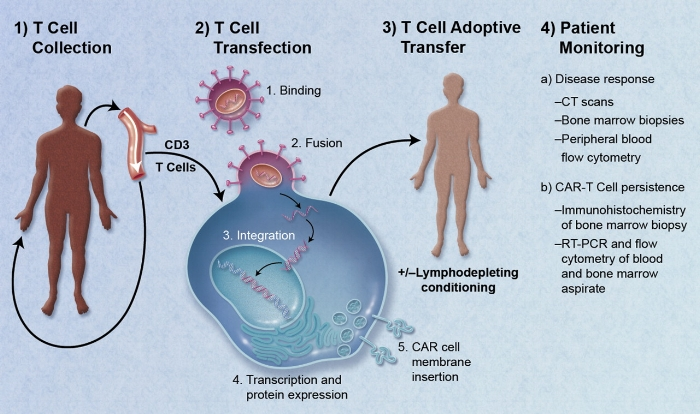 CAR-Engineered_T-Cell_Adoptive_Transfer.jpg