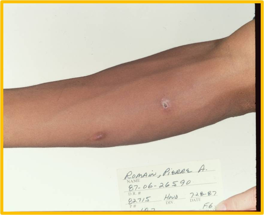 Gunshot wound on Pierre Romain's right forearm
