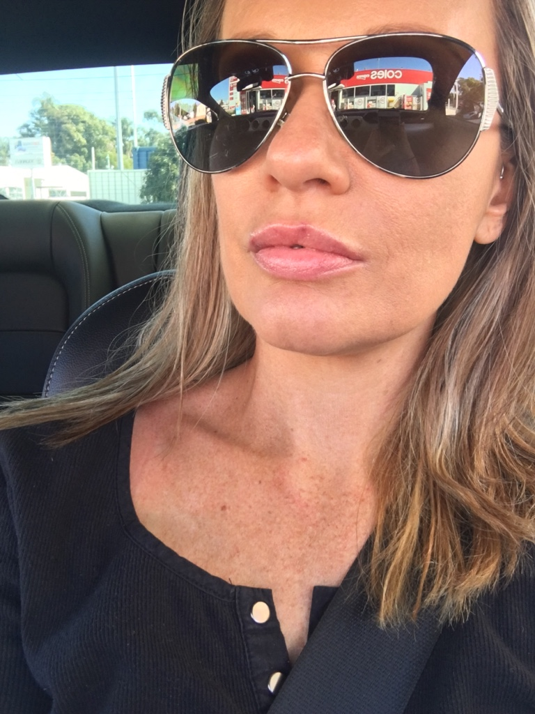 """""""Roh is fantastic. She is knowledgeable in all things injectables and will spend the time ensuring that the end result is perfect. Highly recommend her!"""" -"""