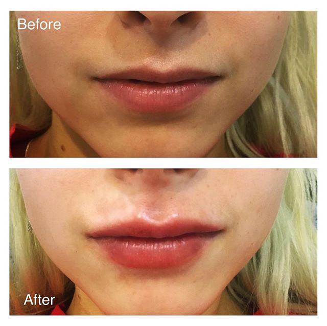 lipsFour.jpg
