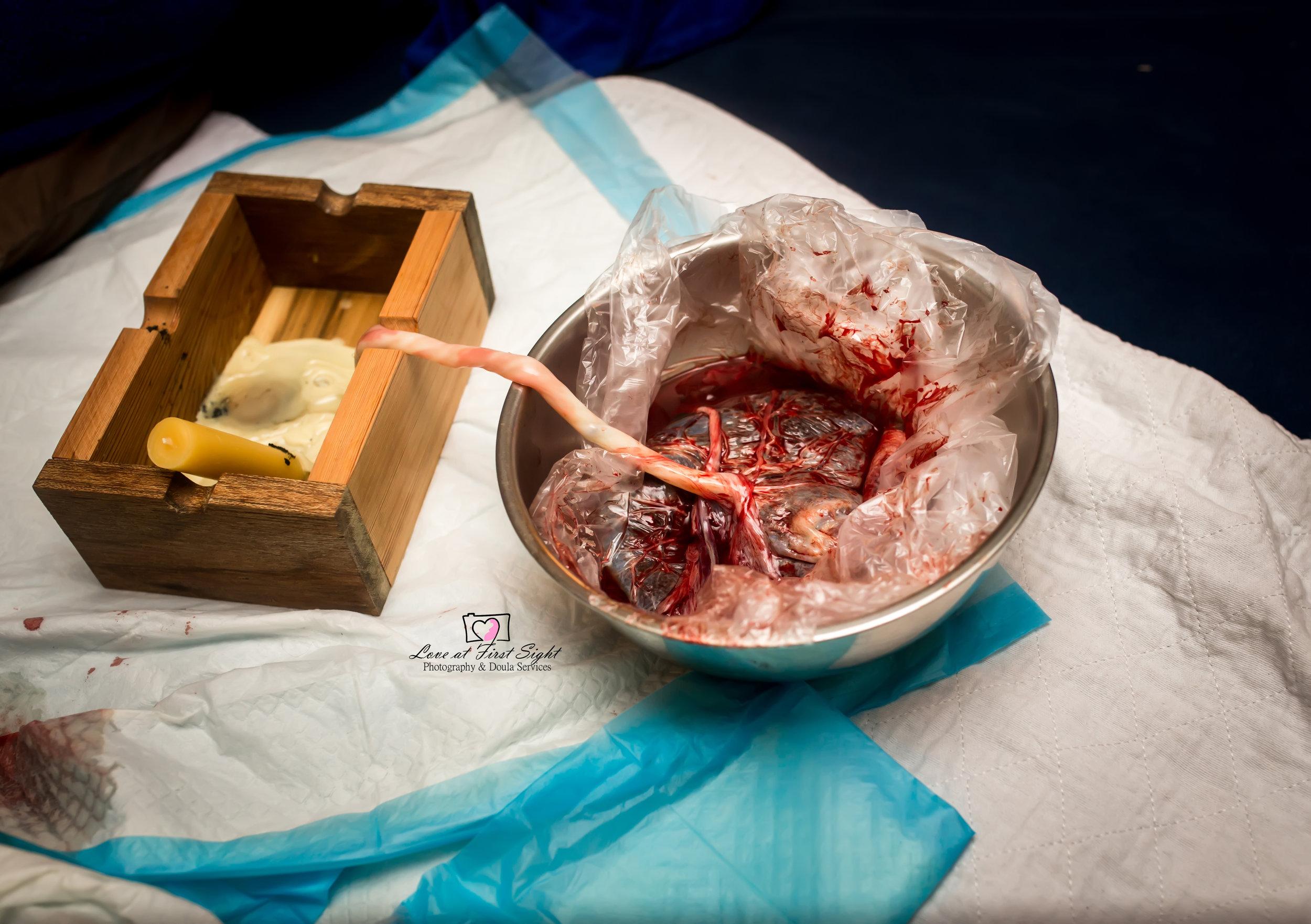 Placenta-Encapsolation-For-Burlington-North-Carolina-Tree-Of-Life-Birth-Collective-By-Kristian-Jordan