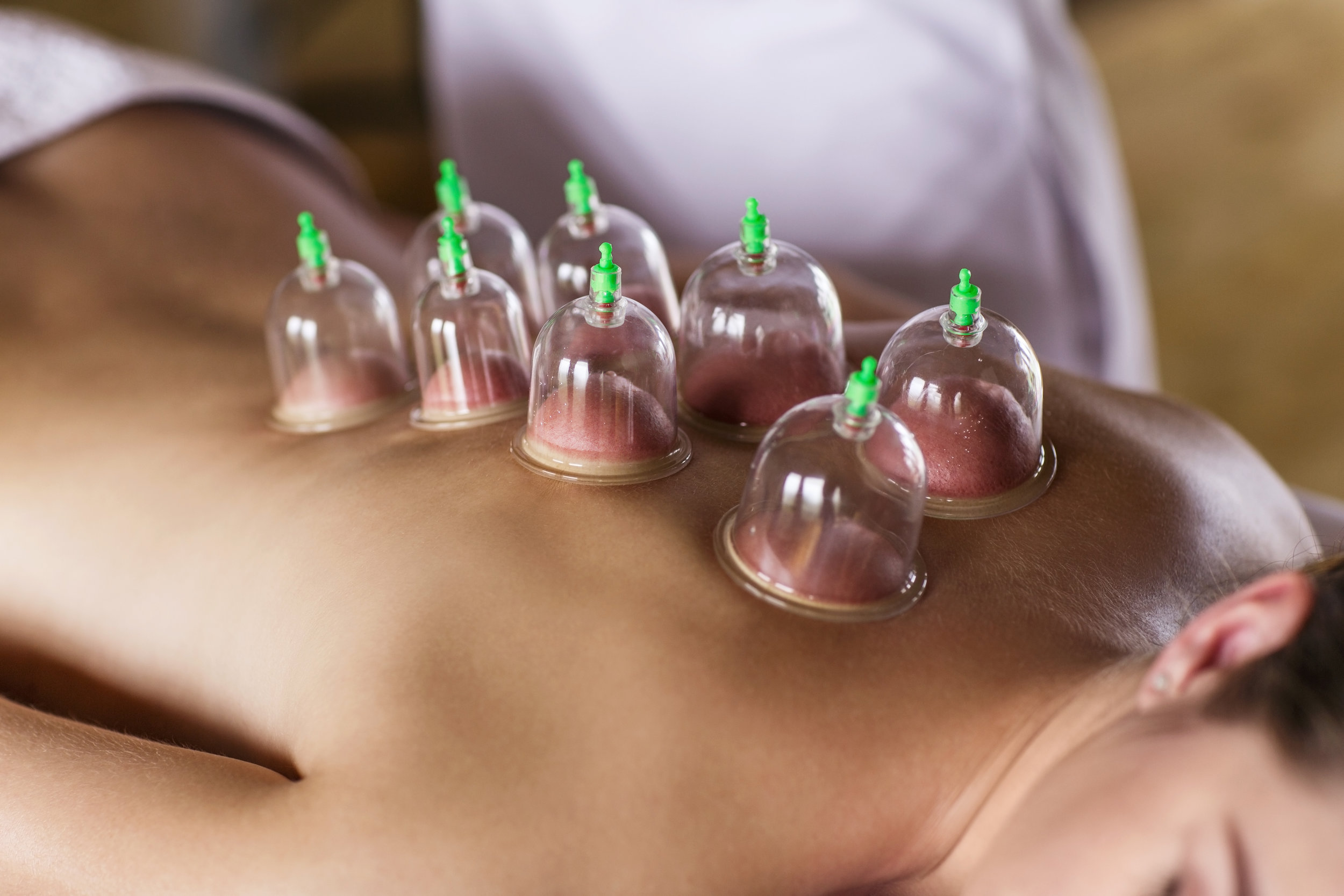 Embody-Balance-Muscle-Pain-Cupping.jpg