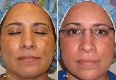 cosmelan-before-after-2-1.jpg