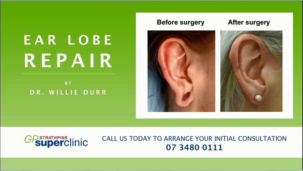 Ear Lobe repairs