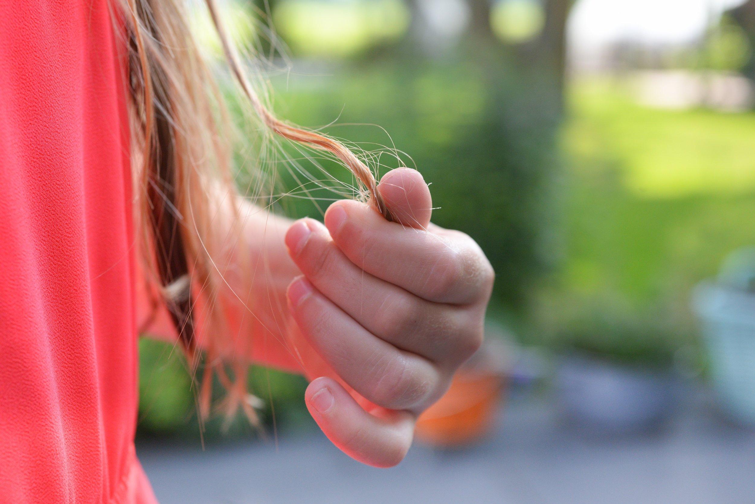 Hair Loss -