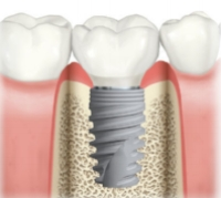 dental-implant-ahmedabad.jpg