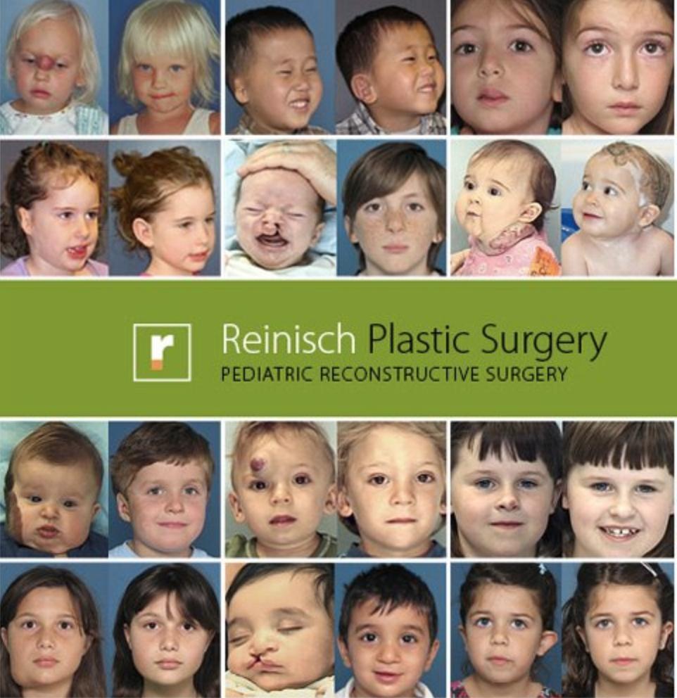 Cirugía Reconstructiva infantil