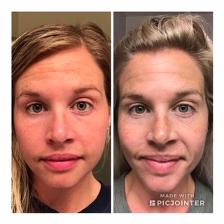 """The """"before/ after"""" of using the TruSkin serum for 6 months. Sorry about the lighting and the prison mugshots…"""