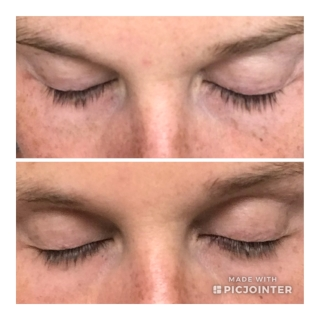"""The """"before (top)/ after"""" using the Lavish Lash for 3 months…"""