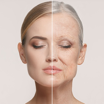 Wrinkle-Reducing Cosmetic Injections -