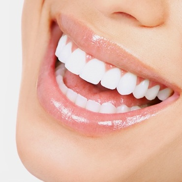 Teeth Whitening -