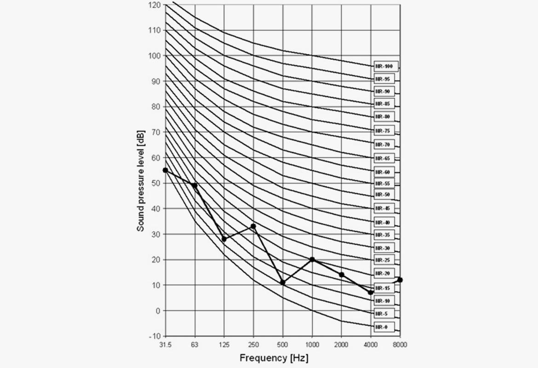 NC Curve