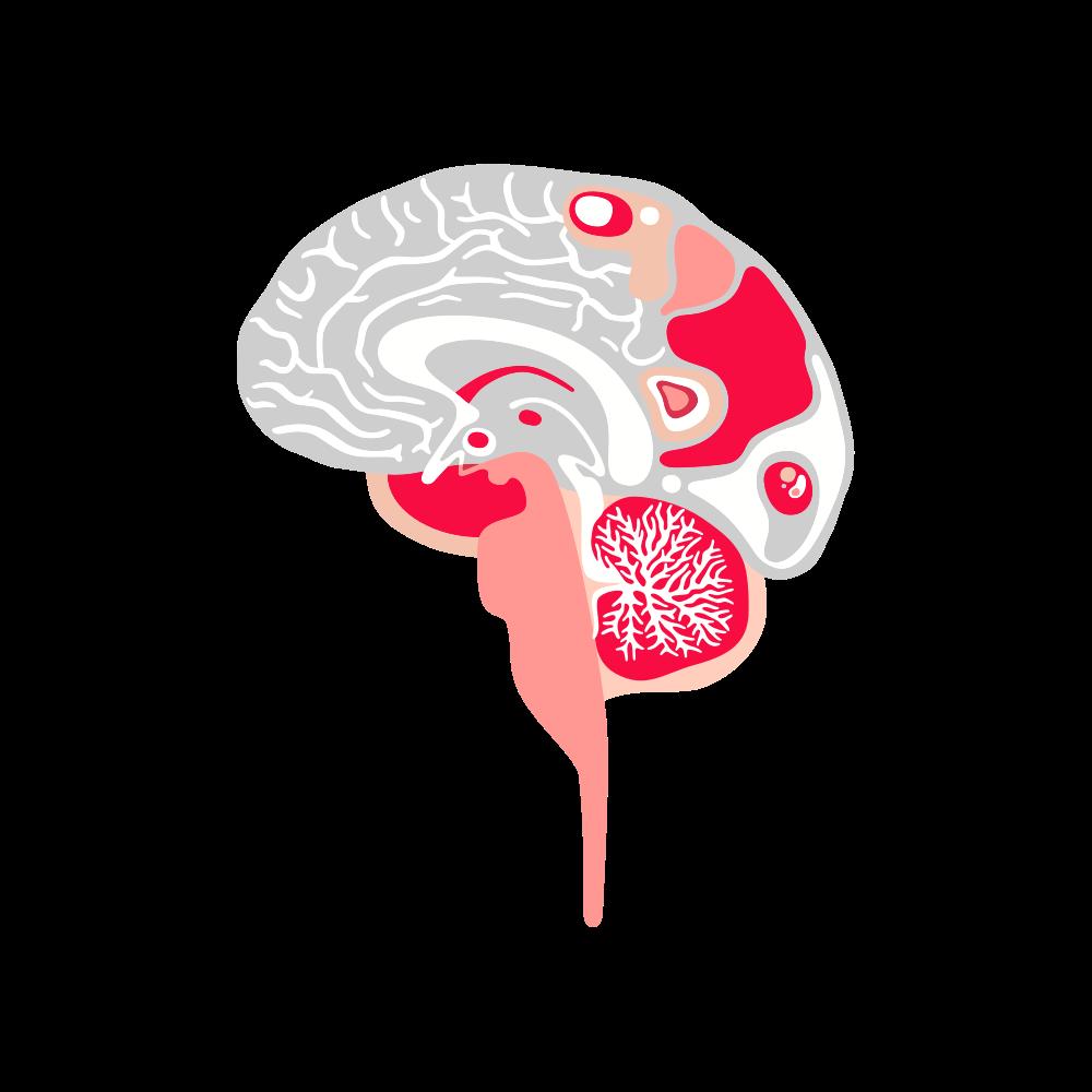 Hjärna-margins1.png
