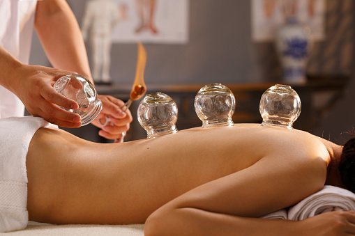 Massage Cupping30 minutePrice Range$20 - Cupping therapy is an ancient form of alternative medicine in which your certified therapist uses special cups on your skin that create suction. The suction creates separation in the layers of your muscle tissue, helping to increase blood flow; which, break up blockages, scar tissues, and any other build up within your muscle tissue. This is a deep tissue service. For more information or feel free to ask your therapist as many questions as necessary to make you comfortable with this modality.