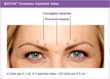 cosmetic injections in new york city to help with crow's feet, forehead lines, plump thinning lips, frown lines and more