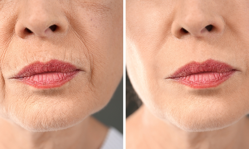 picosure laser treatment for facial skin revitalization