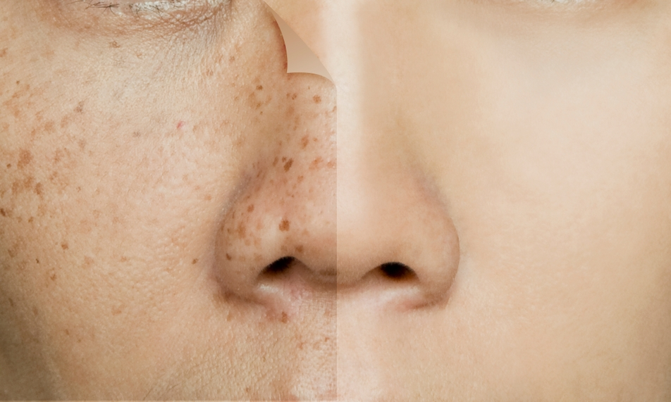 picosure laser treatment for freckles, age spots, liver spots and brown patches