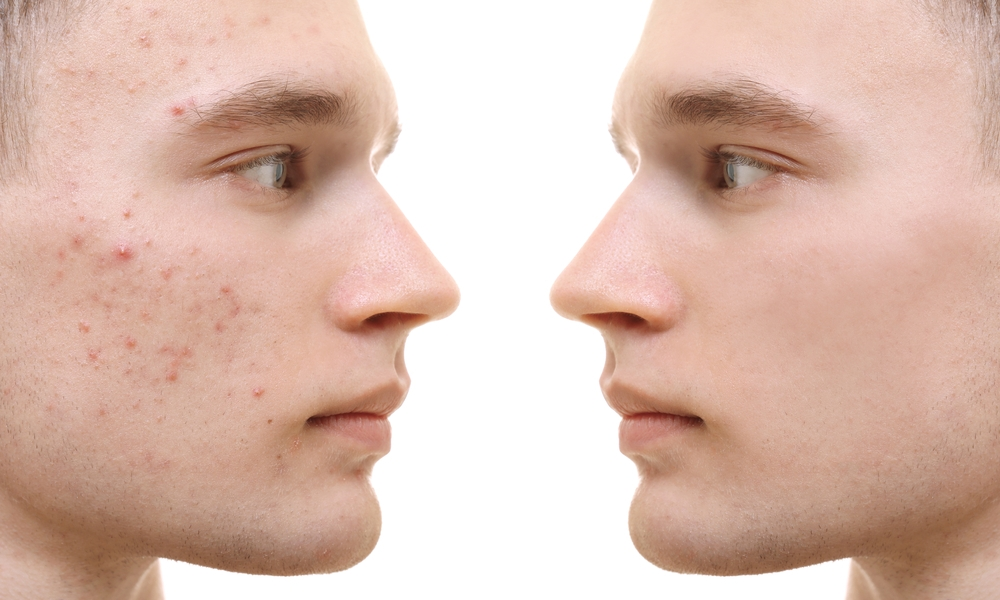 remove acne scars with picosure laser treatment in manhattan, new york city