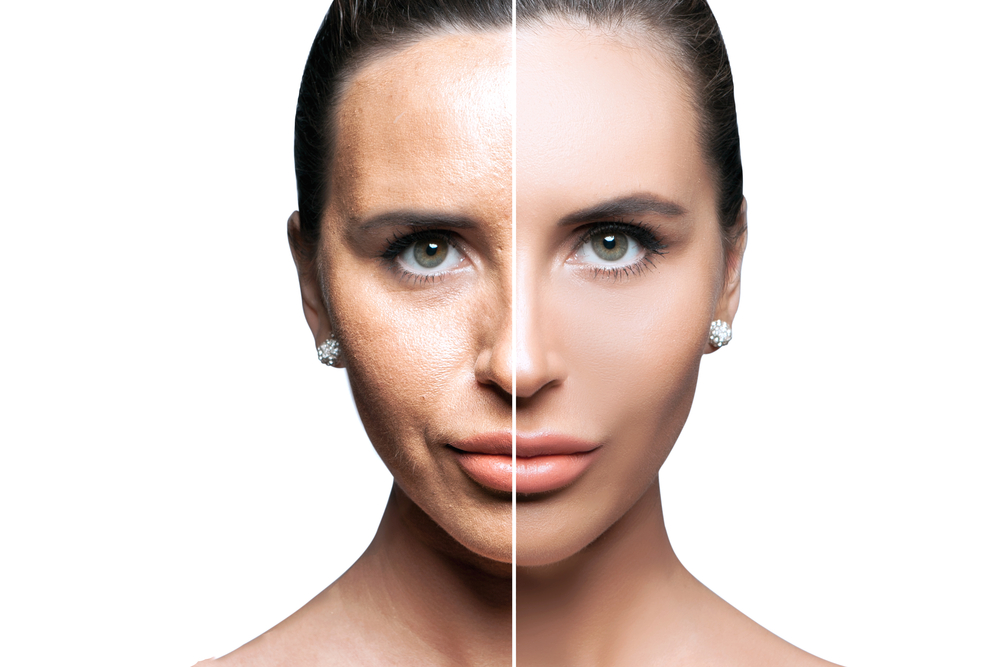 derma fillers for fullness in checks to combat signs of aging