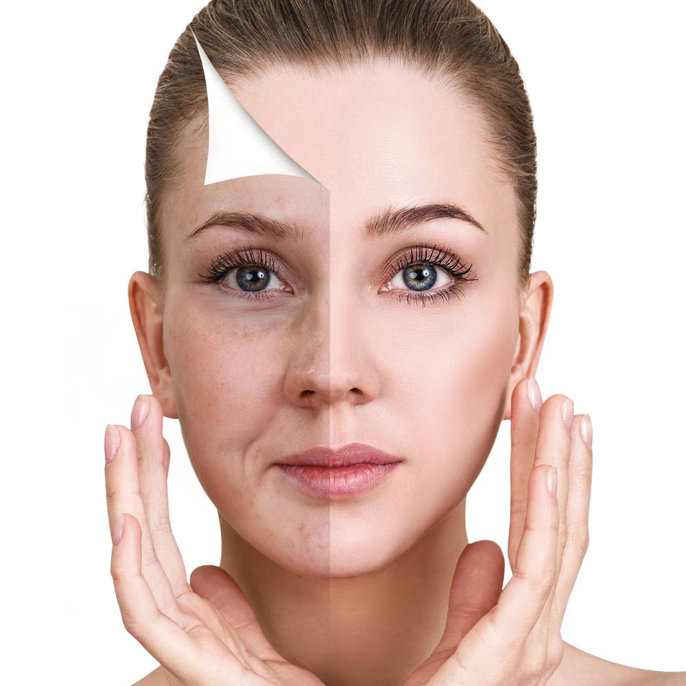 pca peels treatment for skin rejuvenation in manhattan, new york city