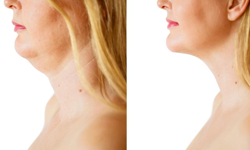 laser treatment for neck skin rejuvenation in manhattan, new york city