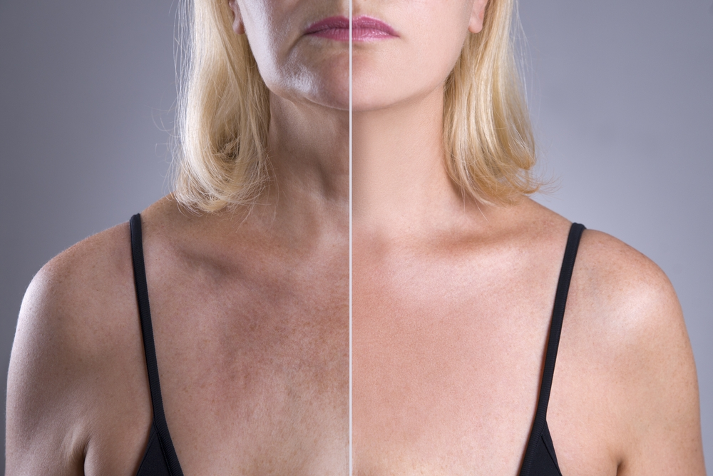 new york city doctor treats woman with picosure laser for skin rejuvenation of décolletage area