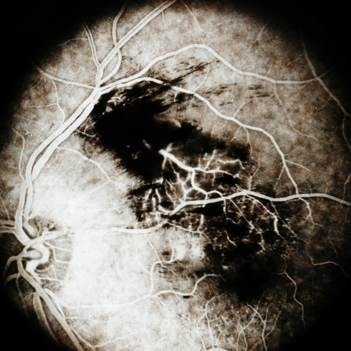Branch+Retinal+Vein+Occlusion+(1).png