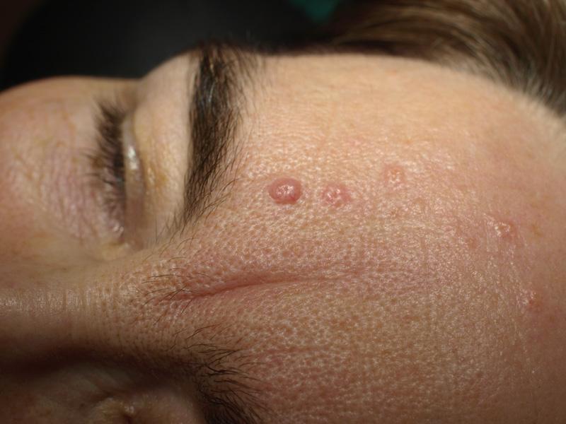 Sebaceous Hyperplasia  Benign Lesion Removal Dermatology