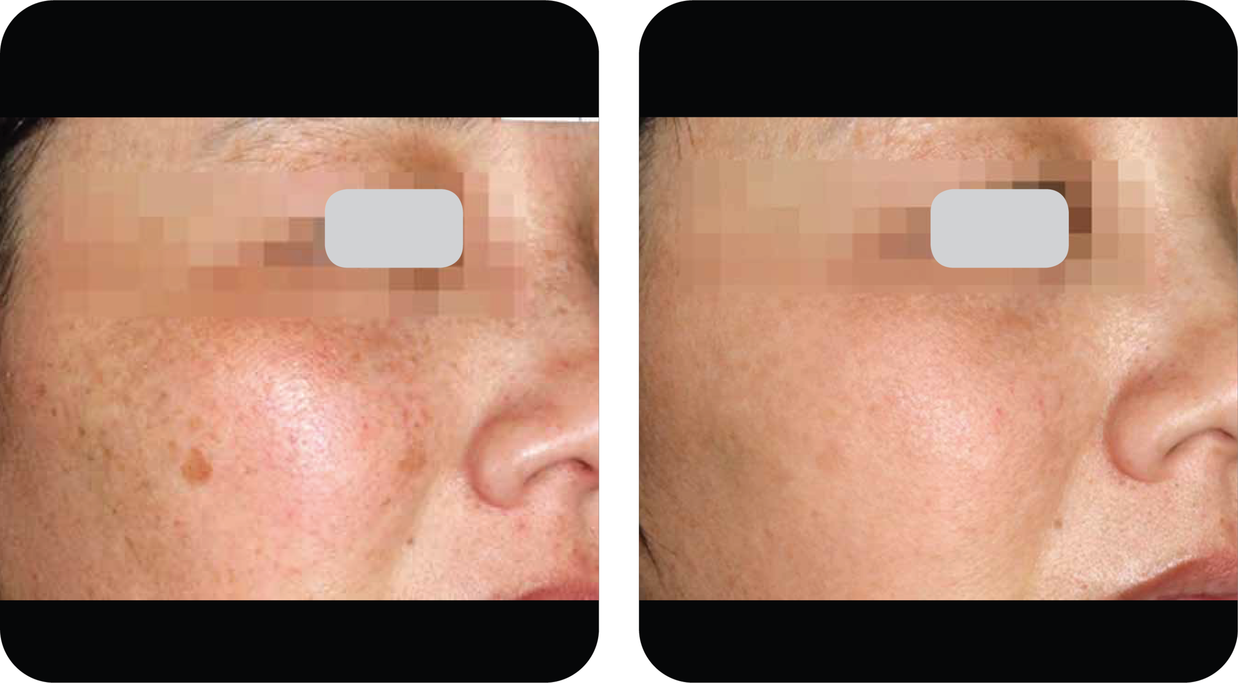 skin dermatology