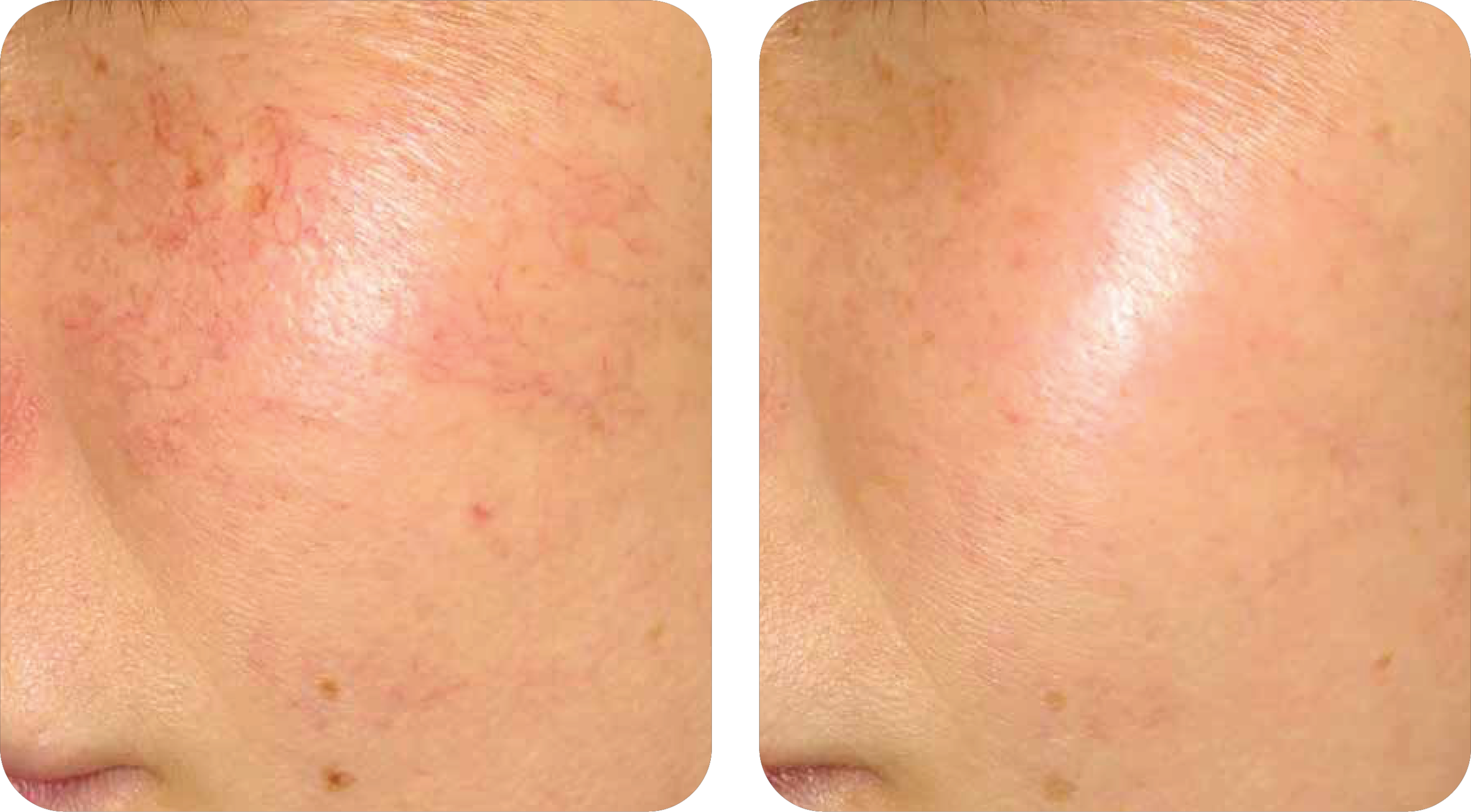 Skin Redness, Rosacea, Dermatologist