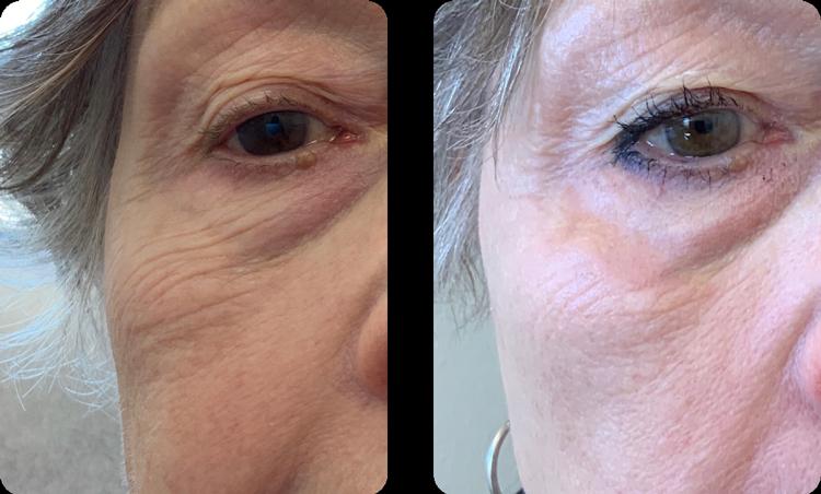 Laser Skin Resurfacing - After 3 Weeks