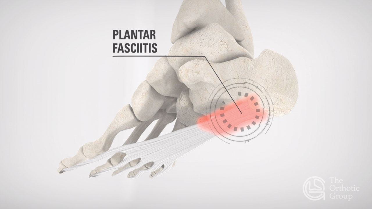 Plantar Fasciitis Shockwave Therapy