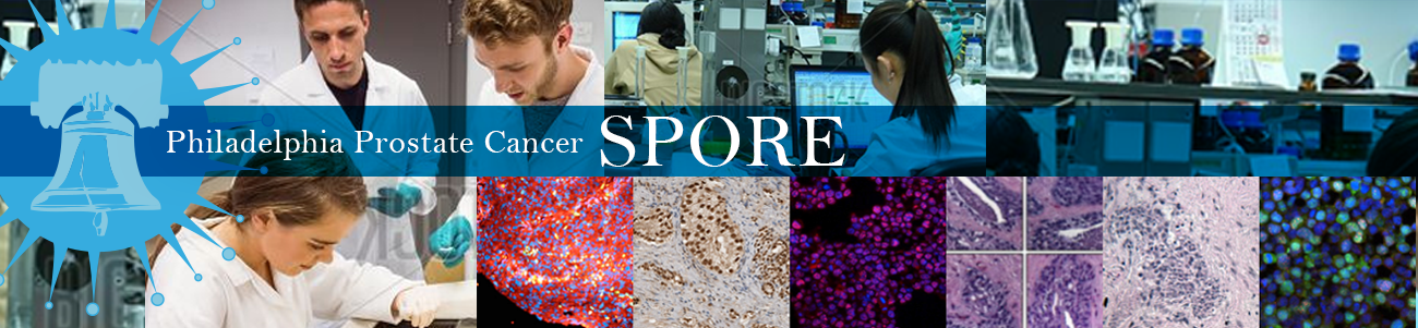 Philadelphia Prostate Cancer SPORE.png