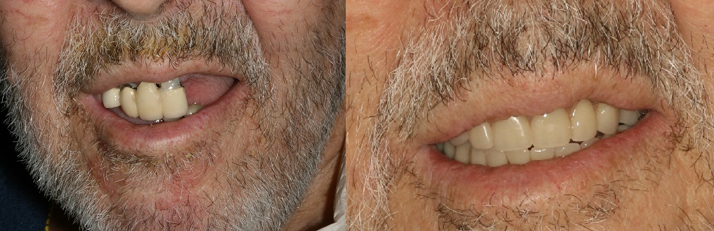 Before and After Implant Supported Denture Photos from West Ridgewood Dental Professionals in Bergen County NJ