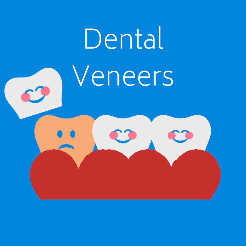 Dental Veneers at West Ridgewood Dental Professionals - Best porcelain Veneer Dentists in Bergen County New Jersey