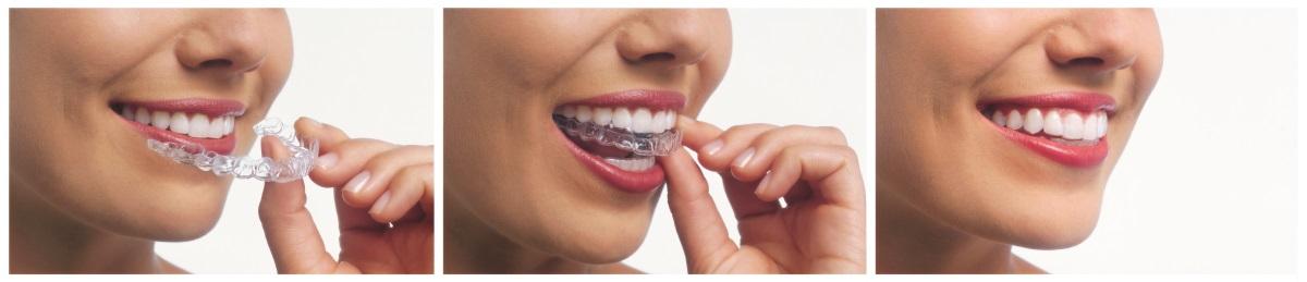Best Invisalign Dentists in Bergen County - West Ridgewood Dental Professionals