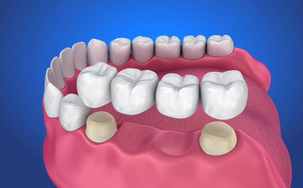 Improve your smile with Dental Bridges in Ridgewood New Jersey - Request an appointment today!