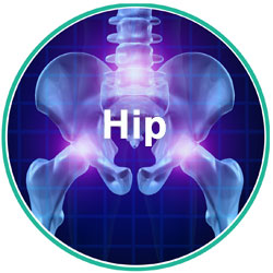 Hips.jpg